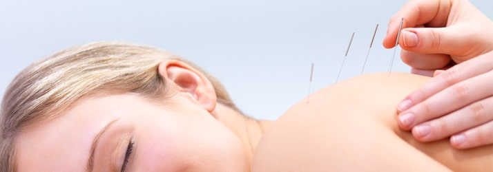 Acupuncture in Crosby MN